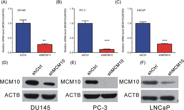 MCM10 knockdown inhibits its expression levels in DU145 and PC‐3 cells. A‐C, Real‐time reverse transcription PCR analysis showed expression of MCM10 mRNA was reduced after transfection with the indicated shRNAs in DU145 (A) PC‐3 (B) and LNCaP (C) cells. D‐F, Western blot analysis showed protein expression of MCM10 was reduced after transfection with the indicated shRNAs in DU145 (D), PC‐3 (E), and LNCaP (F) cells. Data are represented as the mean ± SD (* P