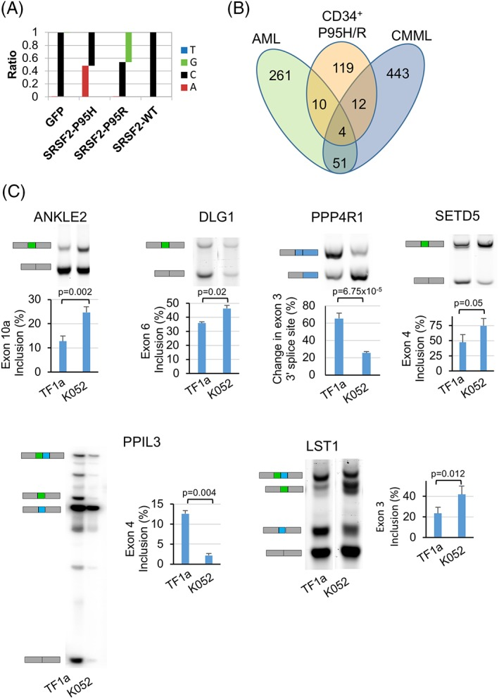 SRSF2 mutations alter splicing profiles of CD34 + cells. (A): Frequency of occurrence of nucleotides G, C, A, and T showing C → A and C → G change in the reads spanning exon 2 from RNA‐Seq libraries from cells expressing SRSF2‐P95H and SRSF2‐P95R, respectively. (B): Venn diagrams showing the overlap among the genes that were aberrantly spliced upon expression of SRSF2 mutations in CD34 + cells, patients with acute myeloid leukemia and chronic myelomonocytic leukemia carrying SRSF2 mutations (Kim et al. 17 ). (C): RT‐PCR analysis showing validation of targets of SRSF2 mutations in TF1a and K562 cells. Gel images showing mRNA isoforms that include and skip cassette exons 10a, 6, and 4 in ANKLE1, DLG1, and SETD5, respectively. Isoforms for mutually exclusive exons 3 and 4 in LST1 and exons 4 and 5 in PPIL3 and change in use of alternative 3′ splice site in PPP4R1 are also shown. Percentages of exon inclusion are represented as mean ± standard error of three independent experiments. The p values were calculated using the Student t ‐test in Microsoft Excel. The p values ≤.05 were considered significant and are shown.