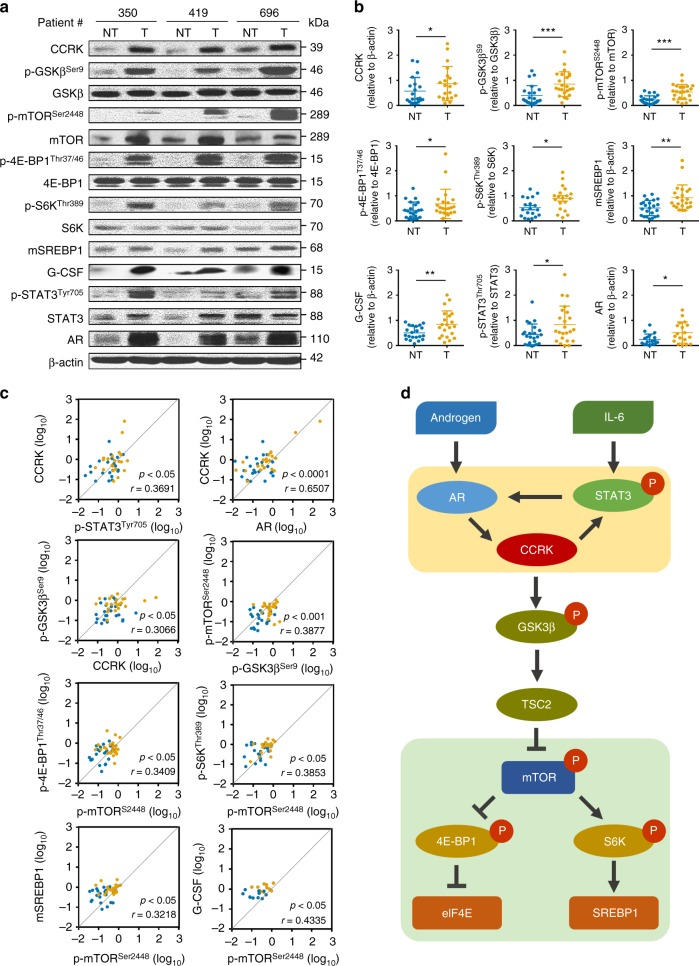 CCRK over-expression correlates with mTOR signaling activation in patients with NASH-associated HCCs. a Western blots showed the induced expressions of CCRK/mTOR signaling proteins in HCC tissues relative to matched non-tumor tissues (23 pairs), and representative results from three patients are shown. b The Western blot results of all patients from a were quantified and shown in dot plots, wherein the fold enrichments of target proteins relative to their corresponding controls are shown. c The positive correlations of STAT3/AR/CCRK/GSK3β/mTORC1 signaling components were confirmed in the patient specimens. d Schematic diagram showing the IL-6-triggered self-reinforcing circuitry of STAT3/AR/CCRK (highlighted in the yellow panel), which activates mTORC1 signaling (highlighted in the green panel) through GSK3β/TSC2 to promote NASH and HCC development. Data are presented as mean ± SD. * p
