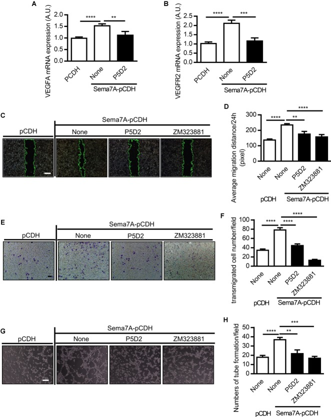 Sema7A enhances VEGFA/VEGFR2 induced cell migration and tube formation through integrin β1. VEGFA (A) and VEGFR2 (B) mRNA expression in Sema7A-pCDH-HUVECs and pCDH-HUVECs were analyzed by QPCR. Cells were further treated with integrin β1 blocking antibody (P5D2, 1 μg/ml) before VEGFA (A) and VEGFR2 (B) detected. Data are shown as mean ± SEM. Results are representative of ≥ 3 independent experiments. A.U = arbitrary unit. ∗∗ P