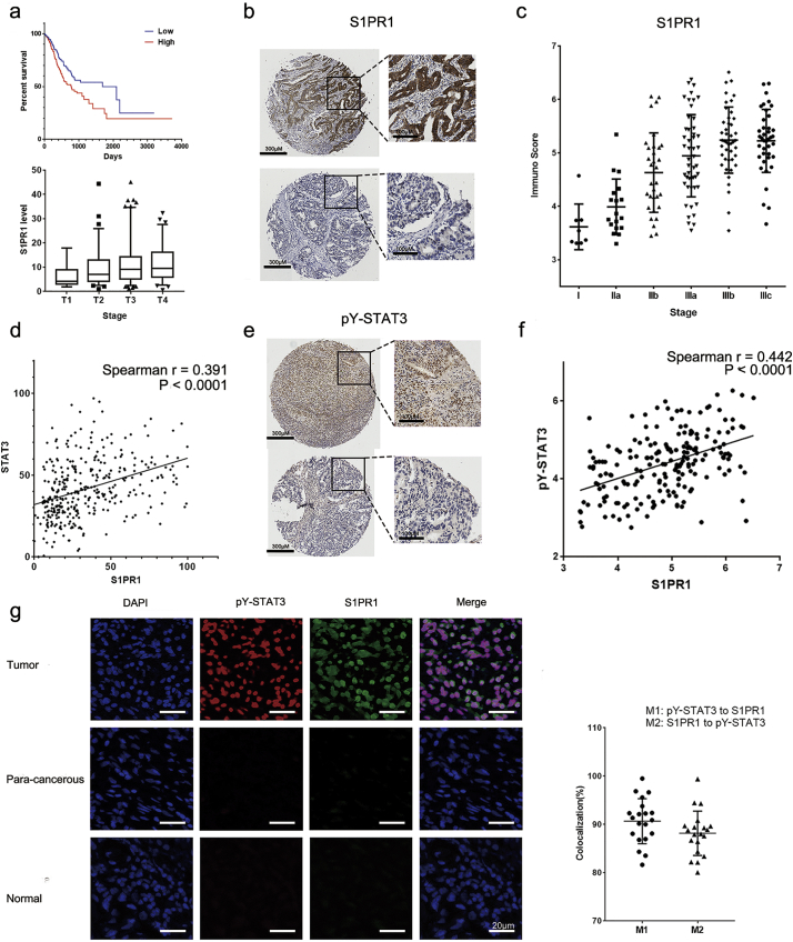 S1PR1 and pY-STAT3 were highly expressed in gastric cancer patients. (A) upper panel, Kaplan-Meier plots for overall survival of high and low transcript levels of S1PR1 in gastric cancer patients; lower panel transcript levels of S1PR1 in 4 stages of gastric cancer patients. (B) Immunohistochemistry staining of S1PR1 of gastric cancer patient tissues. Upper panel: a stage IIIb sample, lower panel: a stage IIa sample. Scale bar: 200 μM left panel, 100 μM right panel. (C) Immuno score levels of S1PR1 in different stage of gastric cancer patients were compared. (D) Correlation of S1PR1 and STAT3 transcript levels in gastric cancer patients. (E) Immunohistochemistry staining of pY-STAT3 of gastric cancer patient tissues. Upper panel stage IIIc, lower panel stage IIa Scale bar: 200 μM left panel, 100 μM right panel. (F) Correlation of S1PR1 and pY-STAT3 protein levels determined by IS in gastric cancer patients. (G) Left panel: Immunofluorescence double staining of S1PR1(green) and pY-STAT3(red) in gastric tumor, para-cancerous and normal samples, DAPI(blue) was adopted to reveal the nuclear of the cells. Scale bar: 20 μM. Right panel, quantification of patient tissue sections for percentages of overlapping red (pY-STAT3) and green (S1PR1) channels, shown as Manders colocalization coefficients M1 (p-STAT3 to S1PR1) and M2 (S1PR1 to p-STAT3), respectively.
