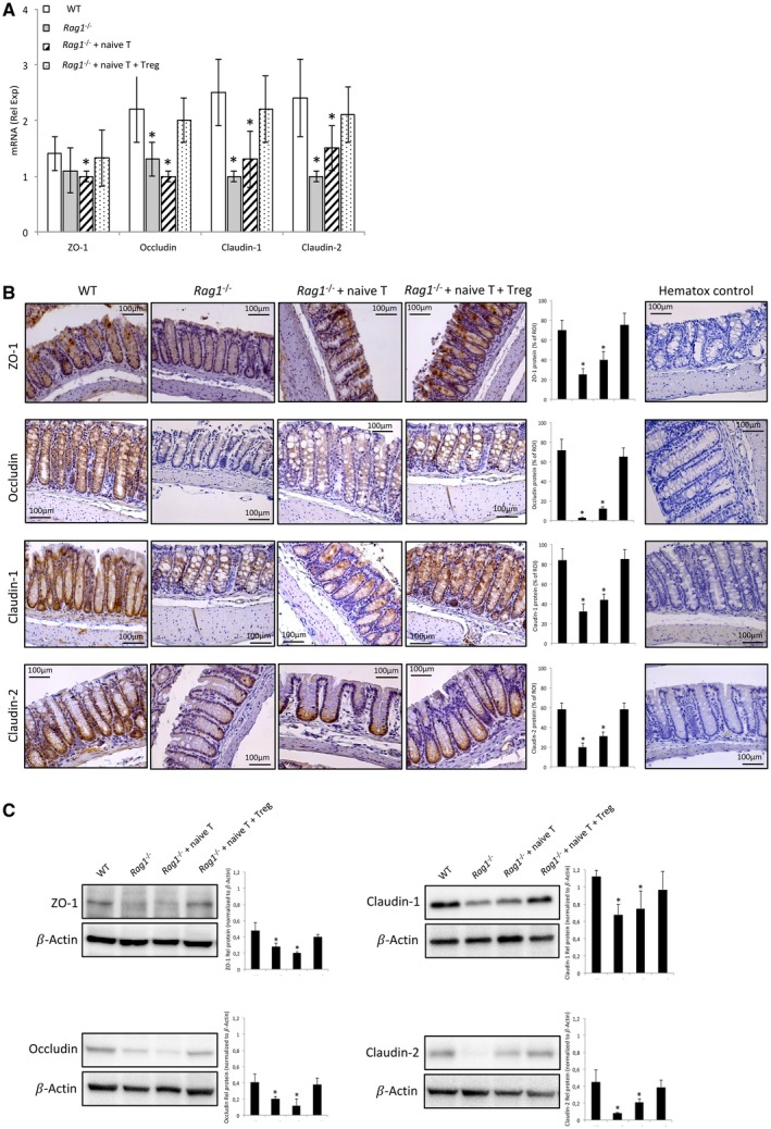 TJ protein expression in WT and Rag1 ‐/‐ cirrhotic mice study groups. (A) mRNA transcripts relative expression of ZO‐1, occludin, claudin‐1, and claudin‐2 in colon tissue homogenates. (B) Representative images of colonic tissue sections from the different study groups. Protein expression was blindly measured in user‐specified regions of interest (ROIs) as percent brown area in hematoxylin‐stained colon samples using the ImageJ software ( http: //rsbweb.nih.gov ). The mean and SDs from three independent ROIs in each sample are represented in bar graphs. Negative control hematoxylin‐stained sections without primary antibody are also shown. (C) Western blot analysis of ZO‐1, occludin, claudin‐1, and claudin‐2 in colon tissue homogenates. Band densitometry analysis shows the mean and SDs from four independent blots run for each protein. * P