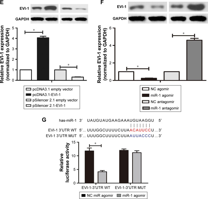 miR-1 negatively regulates the expression of EVI-1 in BCSCs. Notes: ( A ) Real-time PCR analysis of miR-1 expression in breast cancer and normal tissues. ( B ) Real-time PCR analysis of EVI-1 expression in breast cancer and normal tissues. ( C , D ) Expression of miR-1 was increased or reduced in BCSCs transfected with miR-1 agomir or miR-1 antagomir. ( E ) Real-time PCR and Western blotting were performed to detect the expression of EVI-1 in BCSCs transfected with pcDNA3.1-EVI-1 or pSilencer2.1-EVI-1. ( F ) Real-time PCR and Western blotting were performed to detect the EVI-1 expression level in BCSCs transfected with different vectors. ( G ) The effect of miR-1 on reporters of pGL3-EVI-1-WT and pGL3-EVI-1-MUT in BCSCs was measured by luciferase reporter gene assays. * P