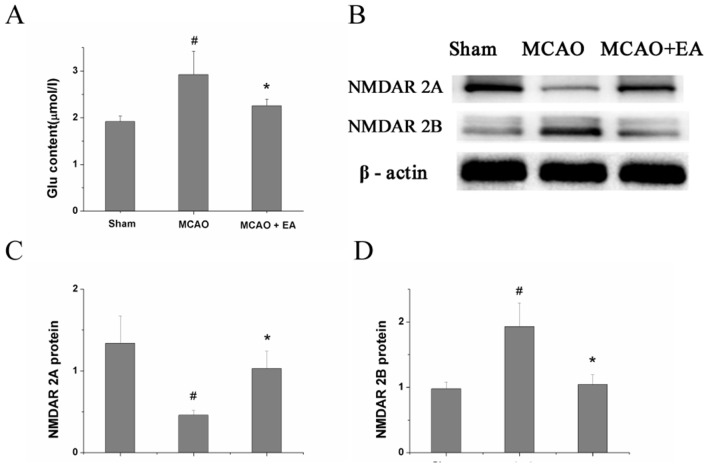 Effect of EA on <t>Glu</t> content and expression of NMDAR2A and NMDAR2B protein. (A) Glu content in the CA1 area of the hippocampus in each group, measured by <t>ELISA.</t> (B) Protein expression of NMDAR2A and NMDAR2B in the CA1 area of the hippocampus in each group, examined by Western blotting. (C,D) Quantitative indices of protein expression of NR2A and NR2B, derived from figure 2B . #P