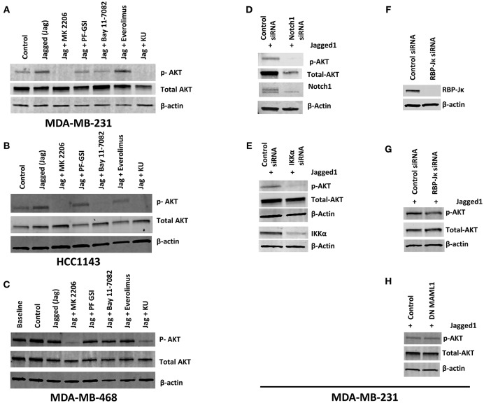 Notch activation induces AKT phosphorylation independently of RBP-Jκ but dependent on IKKα in PTEN-wt TNBC cells. (A,B) MDA-MB-231 (MSL, PTEN-wt) and HCC1143 (BL1, PTEN-wt) cells were plated on gelatin (0.2%) (Control) or human recombinant Jagged1 (1 μg/ml) in gelatin (Jagged) coated plates in the presence of indicated drugs (AKT inhibitor MK-2206, 5 μM), GSI PF-03084014 (5 μM), BAY11-7082 (IKK inhibitor, 5 μM), Everolimus (mTORC1 selective inhibitor, 5 μM), and KU-0063794 (dual mTORC1/mTORC2 inhibitor, 5 μM) for an hour. Western blotting was carried out using whole cell lysates. (C) Similarly, MDA-MB-468 (BL1, PTEN null) cells were plated on control or Jagged1 coated plates for an hour in the presence of indicated drugs and western blot was carried out using whole cell lysates. (D,E) MDA-MB-231 cells were transfected with control siRNA or Notch1siRNA or IKKα siRNA. Forty-eight hours following transfection, equal number of cells were plated on Jagged coated plates for an hour and AKT activation was measured by Western Blot. (F,G) RBP-Jκ was silenced in MDA-MB-231 cells using siRNA. RBP-Jκ silenced and or control cells were plated on Jagged1 coated plates for an hour and phosphorylation of AKT was determined using Western Blot. (H) MDA-MB-231 cells were transfected with a dominant negative form of MAML1 (DN-MAMAL1) or control vector. Cells were then plated on Jagged1 coated plates for an hour and phosphorylation of AKT was determined using Western Blot.