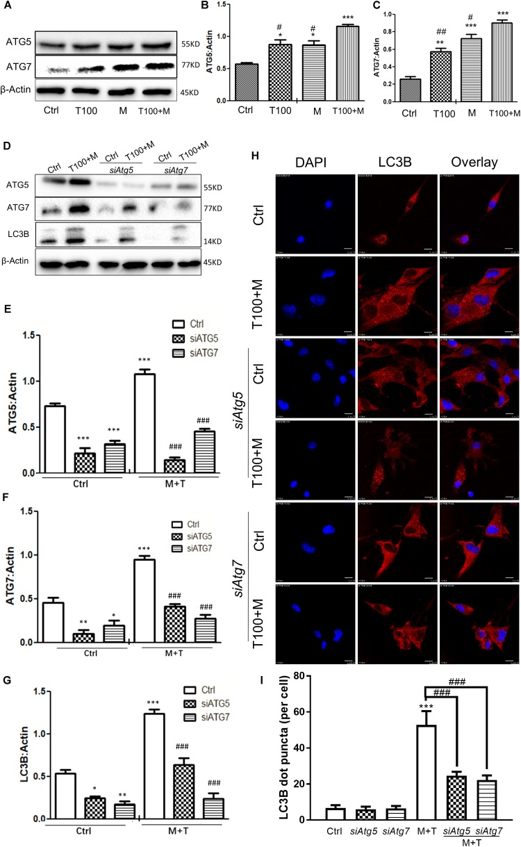 Autophagy-related ATG5 and ATG7 are involved in the <t>METH</t> and <t>HIV-Tat-induced</t> autophagy. (A–C) The abundance of ATG5 and ATG7 proteins were detected in HIV-Tat (T100, 100 nM) and/or METH (M, 0.5 mM)-treated cells for 24 h. The β-Actin protein expression levels of ATG5 and ATG7 were analyzed using Western blot, quantified by Image J software, and displayed using the scatter dot plot, with bars showing the means and individual data points of each column. Representative blot images were shown. ∗ p ≤ 0.05, ∗∗ p ≤ 0.01, ∗∗∗ p ≤ 0.001, compared to the respective controls (Ctrl); # p ≤ 0.05, ## p ≤ 0.01, compared to the M+T100. The data were presented as mean ± S.D. N = 3 biological replicates per group. (D–G) After the Atg5 and Atg7 genes were silenced, the protein levels of ATG5 and ATG7 were analyzed in cells with or without the HIV-Tat (T100, 100 nM) and METH (M, 0.5 mM) treatment for 24 h. Representative blot images were shown. the means and individual data points of each column. Representative blot images were shown. ∗ p ≤ 0.05, ∗∗ p ≤ 0.01, ∗∗∗ p ≤ 0.001, compared to the respective controls (Ctrl); ### p ≤ 0.001, compared to the M+T100. The data were presented as mean ± S.D. N = 3 biological replicates per group. (H) LC3B puncta were detected by fluorescence microscopy to determine the effect of ATG5 and ATG7 on the METH (M, 0.5 mM) and HIV-Tat (T100, 100 nM)-induced autophagy. Representative images were shown. (I) Quantification of LC3B puncta per neuronal cell. A total of five randomly selected neurons in randomly selected fields per treatment were counted. The data were presented as mean ± S.D. ∗∗∗ p ≤ 0.001 compared to the control, ### p ≤ 0.001 compared to the M+T. Representative images were shown.