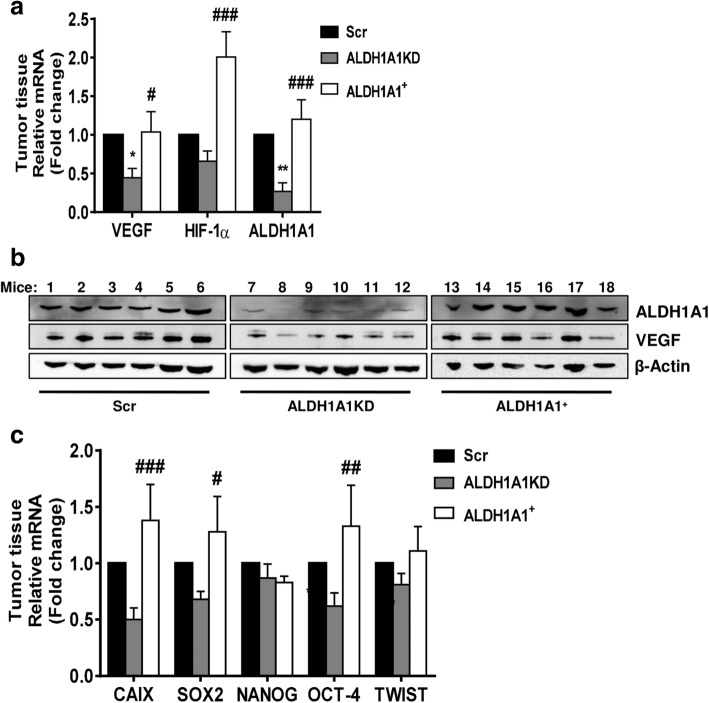 ALDH1A1 influences tumor angiogenesis and VEGF production in vivo. a Evaluation of VEGF, HIF-1α and ALDH1A1 RNA in tumor samples. Frozen tumors were homogenized and RNA was extracted to perform RT-PCR analysis of VEGF, HIF-1α and ALDH1A1 mRNA. Data are reported as ΔCt (Ct gene of interest-Ct Housekeeping gene). Each bar is the mean of 6 different tumors. The experiment was repeated two times. * p