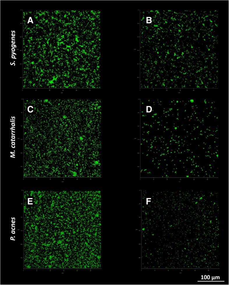 Representative images of S. pyogenes , M. catarrhalis and P. acnes biofilms obtained by CLSM. Panels A, C and E show control biofilms, while panels B, D and F show biofilms co-cultured in presence of the probiotic strains by means of transwell inserts. Green = live cells; red = dead cells; 40× magnification