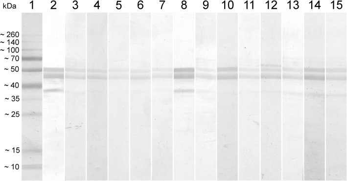 Western blot analyses of the avian serum samples that scored negative for the IDEXX IBV Ab Test and positive in the ELISA-rN. Lane 1: Spectra Multicolor Broad Range Protein Ladder (ThermoFisher Scientific); Lanes 2–15: Serum samples with discrepant ELISA results
