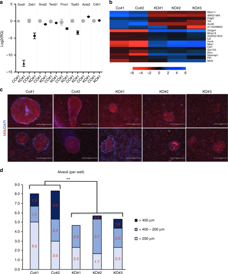 Effect of Sox9 ablation on embryonic mammary progenitor cell fate and function. a qRT-PCR for Sox9 , Zeb1, Snai2 , Twist , Procr , Trp63 , Acta2 , and Ecad in e1/Co#1 and e1/ Sox9 -KO#1 cells. Relative quantification of each sample is normalised to that of e1/Co#1 and shown in log 2 plot with error bar of triplicates ( n = 3, mean ± s.e.m.). b Heatmap from RNA-seq of e1/control and e1/ Sox9 -KO cells of genes that were significantly up- or down-regulated in all three e1/ Sox9 -KO subclones using both DESeq and Intensity Difference test. c In vitro alveologenesis assay results. Formation of alveoli-like structure and milk production was assessed by morphological changes using bright-field microscopy, as well as IF using anti-milk antibody (red) and DAPI. Scale bar, 200 μm. d In vitro alveologenesis assay results. Quantification of number of alveoli
