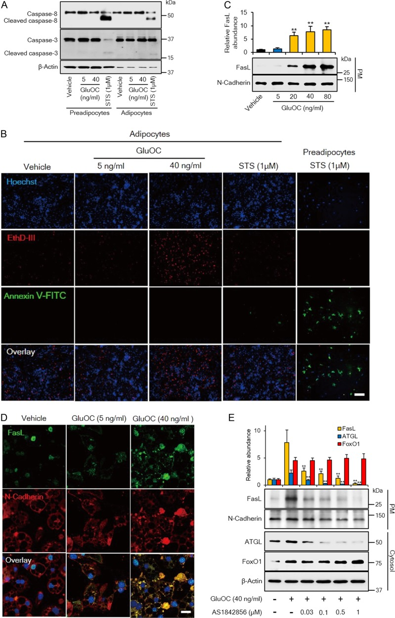 Effects of high-dose GluOC on the expression and localization of FasL and consequent induction of necroptosis in 3T3-L1 adipocytes. a Immunoblot analysis of caspase-8 and caspase-3 (cleaved or full-length) in 3T3-L1 adipocytes or preadipocytes incubated with the indicated concentrations of GluOC or with 1 μM staurosporine for 6 h. The blot is representative of four independent experiments. b Fluorescence microscopic images of 3T3-L1 adipocytes exposed to the indicated concentrations of GluOC or 1 μM staurosporine for 48 h, or of 3T3-L1 preadipocytes exposed to 1 μM staurosporine for 1 h. The cells were stained with Hoechst 33342 (blue), EthD-III (red), and FITC-conjugated Annexin V (green). Scale bar, 200 µm. The images are representative of five independent experiments. c Immunoblot analysis of FasL and N-cadherin (loading control) in the plasma membrane (PM) fraction isolated from 3T3-L1 adipocytes after incubation with the indicated concentrations of GluOC for 12 h. A representative blot, as well as quantitative data (means + SEM, normalized by the amount of N-cadherin) from three independent experiments are shown. ** p