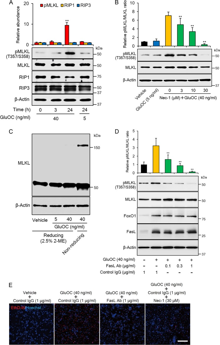 MLKL phosphorylation and trimerization in <t>3T3-L1</t> adipocytes induced by high-dose <t>GluOC</t> in a manner dependent on FasL-Fas signaling. a Immunoblot analysis of total and phosphorylated (Thr 357 /Ser 358 ) forms of MLKL, as well as of RIP1 and RIP3 in 3T3-L1 adipocytes incubated with GluOC (5 or 40 ng/ml) for 3 or 24 h. A representative blot, as well as quantitative data (means + SEM, normalized by the amount of total MLKL or of β-actin) from four independent experiments are shown. ** p