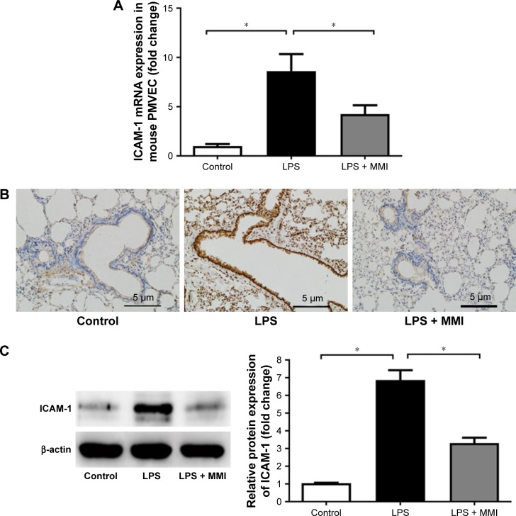 ICAM-1 expression in mice. Notes: After euthanasia, the lung cells were collected and stained with CD45-PE-labeled and CD31-APC-labeled antibodies for 30 minutes at 25°C. The mouse lung microvascular endothelial cells were collected using CD45- and CD31+ immunomagnetic beads. ( A ) mRNA expression of ICAM-1 in PMVECs was increased significantly in the LPS group. The values presented are mean ± SEM. (n=15 in each group). Comparisons were made by one-way ANOVA, * P