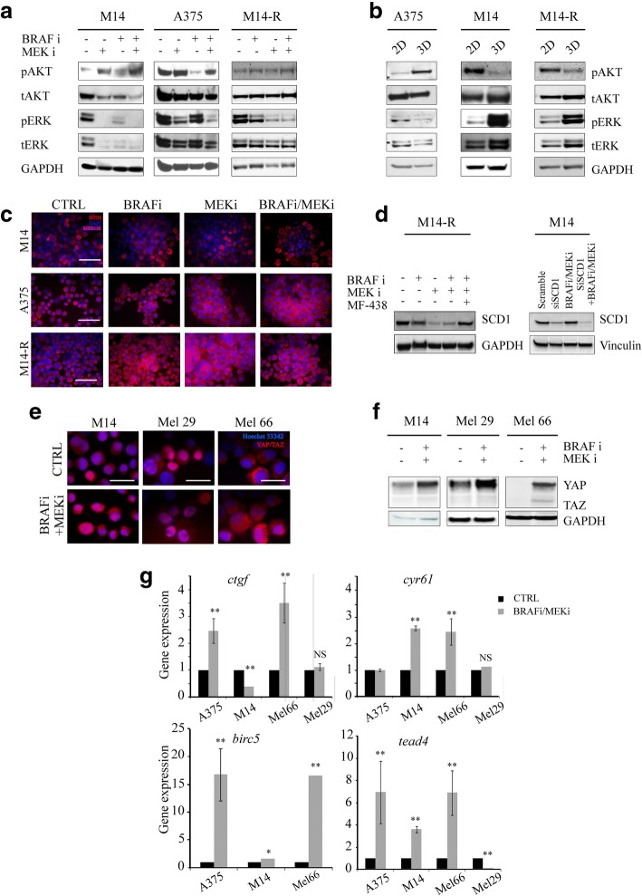 SCD1 expression is able to predict the response of BRAF-mutated-melanoma cells to targeted agents. a - b ) AKT and ERK pathways were examined by WB analyses in protein lysates prepared from M14, A375 and M14-R cells treated with BRAF and MEK inhibitors or their combination (panel a ) grown in adhesion (2D) and as spheroids (3D) (panel b ); c ) SCD1 protein expression performed on fixed M14, A375 and M14-R spheroids after 96 h of treatment with BRAF and/or MEK inhibitors by Immunofluorescence analyses. Scale bar 50 μm; d ) WB analysis of SCD1 protein expression performed on M14-R and M14 spheroids after 96 h of BRAF and/or MEK inhibitors exposure; e ) Immunofluorescence analyses on YAP/TAZ expression were performed on fixed M14, Mel 29 and Mel 66 spheroids after 96 h of exposure to BRAF/MEK inhibitors; Scale bars: 10 μm; f ) Western blotting analysis of YAP/TAZ in M14, Mel 29 and Mel 66 spheroids after BRAF/MEK inhibitors exposure; g) YAP/TAZ downstream target ctgf , cyr61 , birc5 and tead4 expression in A375, M14, Mel 29 and Mel 66 by qRT-PCR analyses