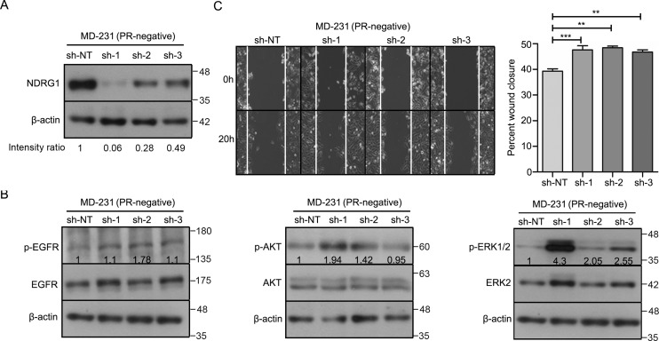 Depletion of NDRG1 activates multiple cellular kinases and increases migration of MDA-MB-231 cells. A , Western blot analysis depicting knockdown of NDRG1 in MD-231 breast cancer cells (PR-negative). sh-NT was used as vector control for NDRG1 expression. β-Actin protein was used as a loading control for Western blotting. Numbers on the blot indicate the intensity ratio for NDRG1, normalized to respective β-actin levels. The analysis is representative of three independent experiments. B , Western blot analysis of p-EGFR (Tyr-1086), p-AKT (Ser-473), and p-ERK1/2 (Thr-202/Tyr-204) in NDRG1 knockdown clones of MD231 cells. β-Actin was used as a loading control for Western blotting, and β-actin for the p-EGFR and p-ERK1/2 panels is the same. The numbers on the blot indicate average intensity ratio calculated from all of the three replicate experiments for phosphorylation levels of EGFR, AKT, and ERK1/2, normalized to respective total protein levels (EGFR, AKT, and ERK2). Western blot analysis is representative of three independent experiments. C , migration of cells was measured from 0 to 20 h by using a time-lapse wound healing assay. The bar plot represents percentage wound closure (average of the three biological replicate experiments), and the comparison was with respect to sh-NT. The figure is representative of three independent experiments performed in triplicates. p value was calculated using Student's unpaired t test. **, p