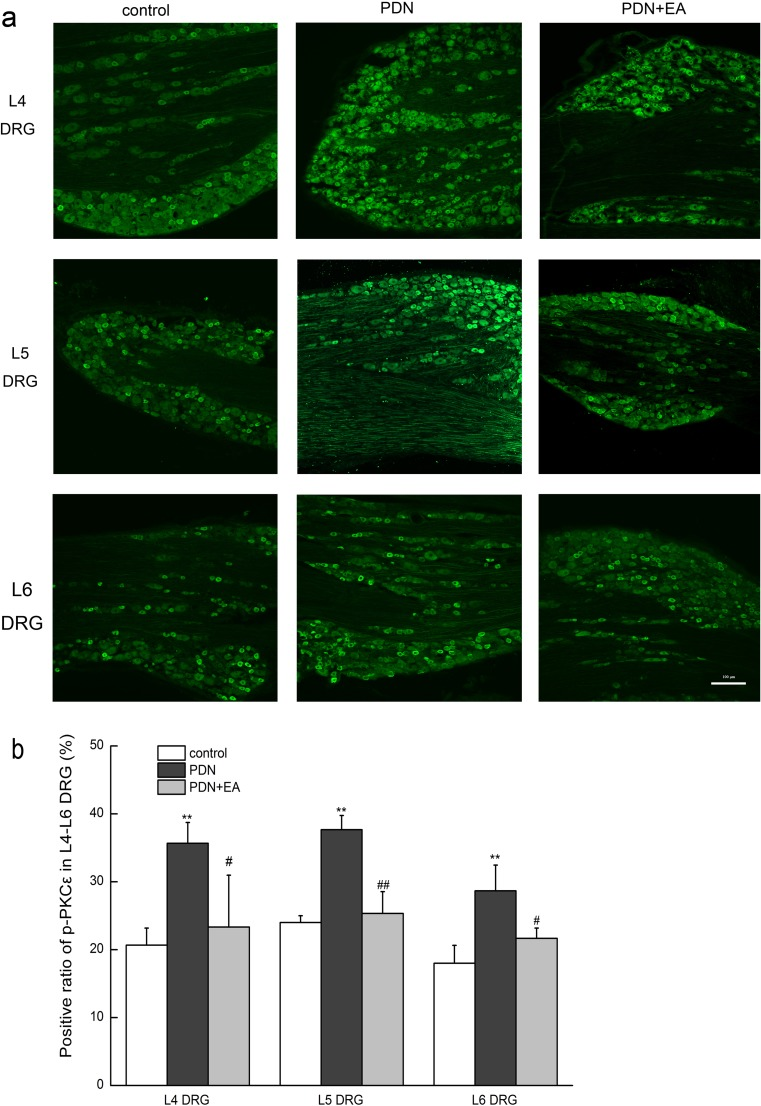 Effects of 2-Hz EA on p-PKC ε expressions in L4–L6 DRGs of PDN rats after EA treatment for 7 days. a Representative bright-field micrographs showing p-PKC ε -immunoreactive neurons in L4, L5, and <t>L6</t> DRGs of rats. Scale bar = 100 μm. b Statistical analysis of L4, L5, and L6 DRG p-PKC ε -immunoreactive neurons. Scale bar = 100 μm. Data were presented as mean ± SD, n = 3 per group. ∗∗ P