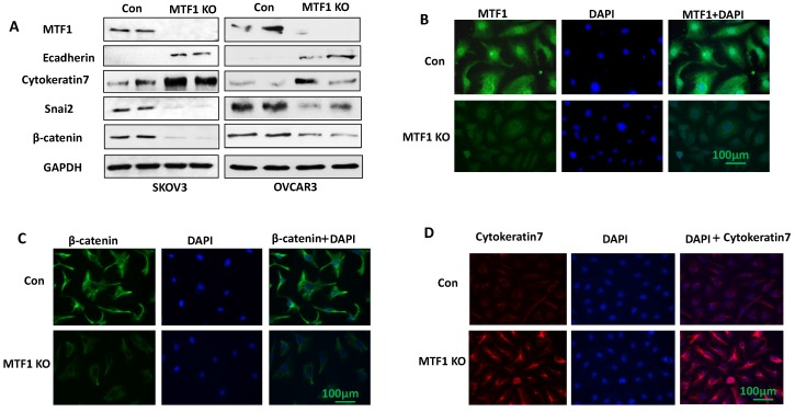 Lentiviral <t>CRISPR/Cas9</t> <t>nickase</t> vector-mediated MTF1 gene editing resulted in inhibition of EMT in ovarian cancer cells. A. MTF1 and EMT marker expression was examined in MTF1 KO and control SKOV3 and OVCAR3 cells by Western blot. B. Immunofluorescent staining of MTF1 expression in SKOV3 MTF1 KO and control cells. C. Mesenchymal marker β-catenin was stained in SKOV3 MTF1 KO and control cells. D. Epithelial marker cytokeratin 7 was stained in SKOV3 MTF1 KO and control cells.