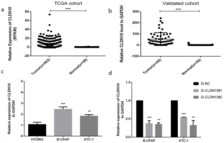 CLDN10 is up-regulated in human PTC tissues and cell lines. (a) Relationship of expression levels of CLDN10 in thyroid tumor tissues and normal tissues in TCGA. (b) CLDN10 is significantly increased in 55 human PTC tissues in comparison to matched adjacent tissues. (c) The relative expression of CLDN10 to GAPDH using qRT-PCR. Both B-CPAP and KTC-1 cell lines are overexpressed. (d) The efficiency of siRNAs (Si-NC, Si-CLDN10#1 and Si-CLDN10#2) was assayed by qRT-PCR in B-CPAPA and KTC-1 cells. *P