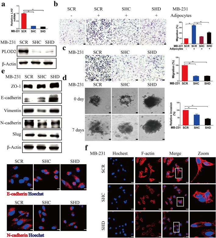 PLOD2 knockdown attenuates breast cancer cell migration in vitro. a PLOD2 was knocked down using two independent short hairpin RNAs (SHC and SHD) in MDA-MB-231 (MB-231) cells. qRT-PCR and Western blotting were used to detect PLOD2 expression in scramble (SCR) and PLOD2-knockdown cells (SHC, SHD). Error bars represent means ± SD. ** P