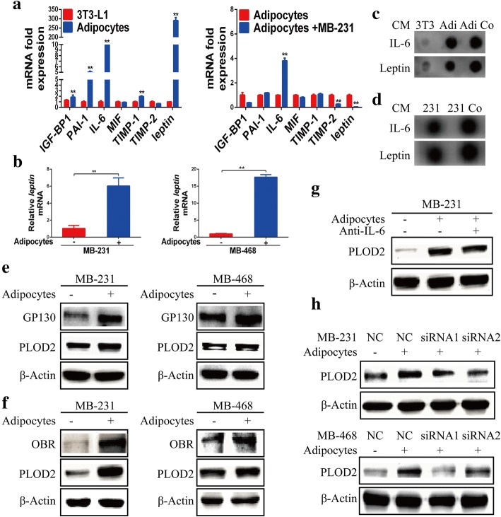 Adipocyte-derived IL-6 and leptin regulate PLOD2 expression. a qRT-PCR analysis of the relative expression levels of IGF-BP1, PAI-1, IL-6, MIF, TIMP-1, TIMP-2 and Leptin in 3 T3-L1 preadipocytes, adipocytes and adipocytes cocultured with MDA-MB-231 (MB-231) breast cancer cells. Error bars represent means ± SD. ** P