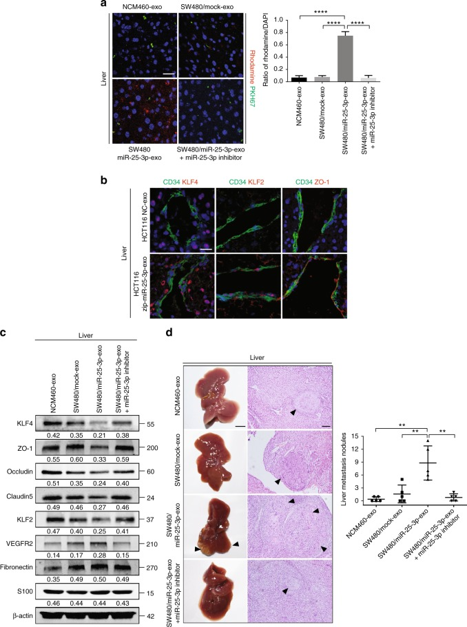 CRC-secreted miR-25-3p primes pre-metastatic niche. a Effects of NCM460 exosomes, SW480/mock exosomes, SW480/miR-25-3p exosomes, SW480/miR-25-3p exosomes + miR-25-3p inhibitor treatments on vascular permeability of mice liver by in vivo permeability assay. The mice were injected with rhodamine–dextran after exposure to PKH67-labeled exosomes. Levels of rhodamine–dextran fluorescence in tissues were quantified using Image J software and normalized to the levels of DAPI. Mean ± SEM are provided ( n = 5). Scale bar represents 50 µm. b Effects of NCM460 exosomes, SW480/mock exosomes, SW480/miR-25-3p exosomes, SW480/miR-25-3p exosomes + miR-25-3p inhibitor treatments on vascular KLF4, KLF2, and ZO-1 expression (red) in hepatic vessels by immunofluorescence. The vascular structures were labeled by CD34 (green). Scale bar represents 50 µm. c Effects of NCM460 exosomes, SW480/mock exosomes, SW480/miR-25-3p exosomes or SW480/miR-25-3p exosomes + miR-25-3p inhibitor treatments on KLF4, ZO-1, occludin, Claudin5, KLF2, VEGFR2, fibronectin, and S100 expression in mice liver by Western blot. d The mice were intra-spleen injected with naked SW480 cells after exposure to NCM460 exosomes, SW480/mock exosomes, SW480/miR-25-3p exosomes or SW480/miR-25-3p exosomes + miR-25-3p inhibitor treatments. The number of liver metastatic sites (indicated by arrows) was counted under the microscope. Mean ± SEM are provided ( n = 5). Scale bar in left panels represents 0.5 cm. Scale bar in right panels represents 100 µm. ** P
