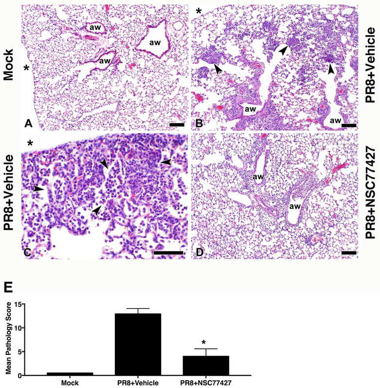 GRP inhibitor, NSC77427, reduces lung pathology after influenza PR8 challenge. WT C57BL/6J mice (5 mice/treatment group) were infected i.n. with mouse-adapted influenza strain PR8 (LD 90 ; ~7500 TCID 50 ). Mice received vehicle (saline+0.0096% DMSO) or GRP inhibitor (NSC77427; 20 μM/mouse; i.v.) daily from day 2 to day 6 post-infection. On day 7 post-infection, mice were euthanized and lungs were extracted, fixed, and stained for histopathology. Photomicrographs of representative sections were taken at 10x (A, B, and D), and at 40x (C). All scale bars are 100 microns. N = 4 mice/group. * indicates the pleural surface. (E) Quantitation of lung injury is based on the scoring system detailed in the Materials and Methods section. Data shown are mean ± SD. *, p = 0.002