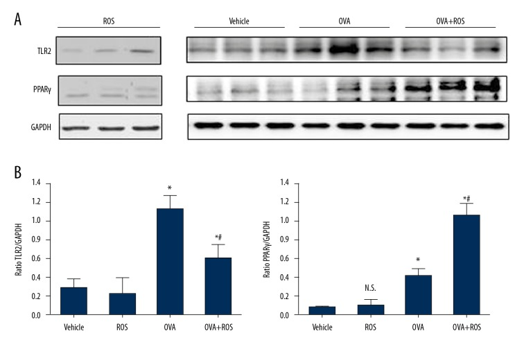 Expression of toll-like receptor 2 (TLR2) and peroxisome proliferator activated receptor agonist (PPARγ) proteins were significantly decreased after rosiglitazone treatment. ( A ) Expression of TLR2 and PPARγ proteins by western blot analysis. ( B ) Quantitative analysis of protein test strips. Data are represented as the mean ±SD. * P