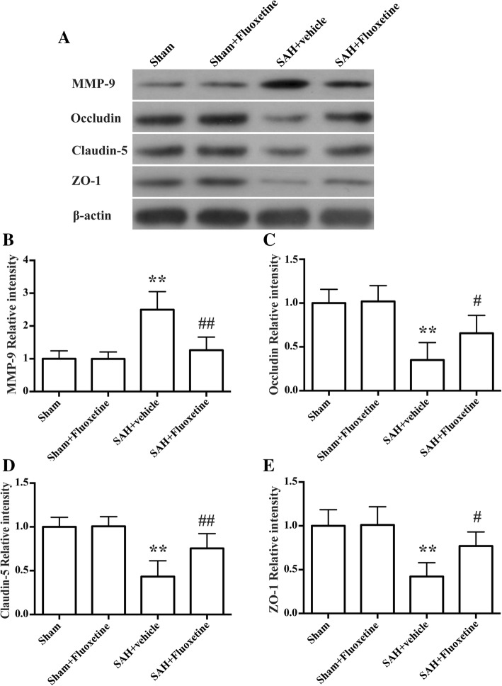 Fluoxetine downregulated MMP-9 expression and prevented degradation of the tight junction proteins in the ipsilateral cortex at 24 h after SAH. a Representative western blot bands of MMP-9, <t>occludin,</t> claudin-5, and ZO-1. b Densitometric quantification of MMP-9. ** p