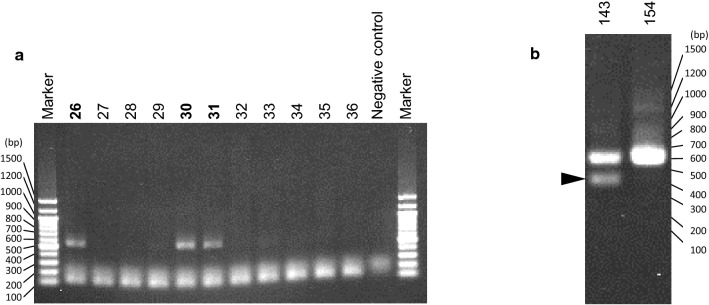 Representative agarose-gel images. a A representative agarose-gel image of PCR-amplified 16S rDNA. The number of specimens regarded as positive are shown in bold. PCR reaction of the negative control sample was performed without any DNA extracted from catheter specimen. The bands around 100 to 200 bp are considered to be primer dimers. b A representative agarose-gel image of index PCR products. The minor band, presumably due to nonspecific amplification, is indicated by an arrowhead