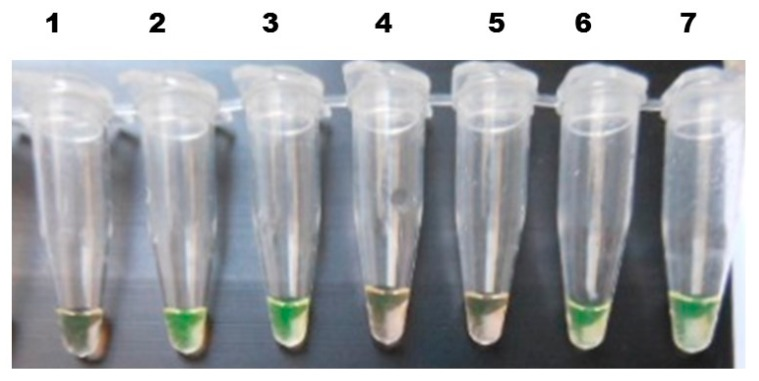 Detection of the Sj28S gene component in the different parasite developmental stages of S. japonicum in O. hupensis by the <t>LAMP</t> method. 1. Negative control (nuclease-free water); 2. Positive control (Sj28 plasmid <t>DNA);</t> 3. Cercariae; 4. Specificity control ( Trichobilharzia cercariae); 5. Negative control (pooled snail DNA from a non-endemic area); 6. Mother sporocyst; 7. Daughter sporocyst.