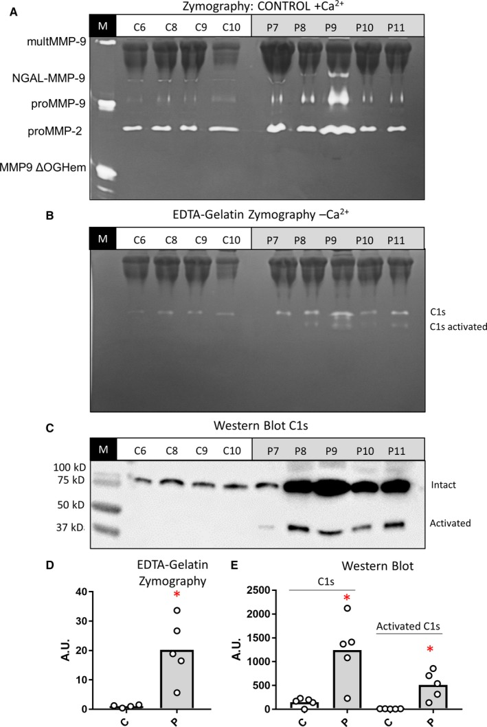 Study of the presence of C1s in IC : (A and B), 50 μl volumes of plasma samples from healthy controls and SLE patients were incubated with protein‐G‐Sepharose to precipitate the IgG and IgG‐ IC . The bound fractions were analyzed by gelatin zymography in the absence (A) or presence (B) of 10 m mol L −1 EDTA . C, Western blot analysis of the same fractions shown in panels A and B for the detection of C1s. D, Quantification of the bands at 90‐80 kDa detected in the zymography from panel B. E, Quantification of the Western blot analysis. P values were determined by ANOVA Kruskal‐Wallis test, * P