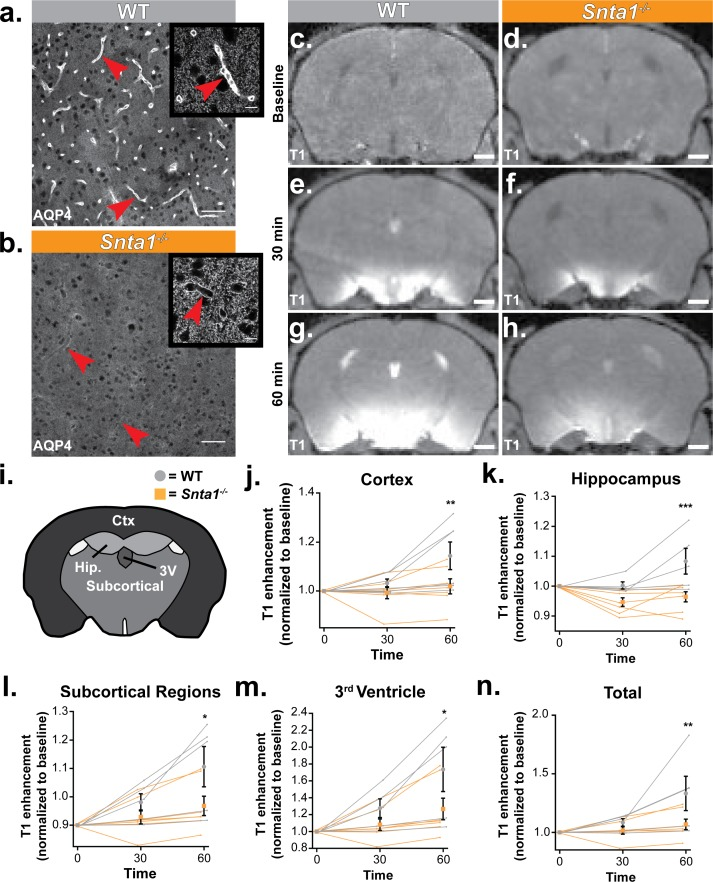 Deletion of the adapter protein α-syntrophin impairs AQP4 perivascular localization, and CSF influx into the brain parenchyma. Dynamic contrast enhanced magnetic resonance imaging (DCE-MRI) was acquired on a 11.75 preclinical MRI scanner, and was used to characterize the effect of α-syntrophin deletion on gaditeridol influx into the brain. Representative images of AQP4 perivascular localization in wild-type mice ( a ), and the loss of perivascular localization of AQP4 seen in the Snta1 -/- mice ( b ). Scale bar: 50 µm, inset scale bar: 10 µm. ( c-h ) Coronal slice of T 1 -weighted images acquired by DCE-MRI demonstrate the reduced influx of gaditeridol contrast agent into the parenchyma in Snta1 -/- mice relative to wild-type mice at 30 and 60 min. Scale bar: 1 mm. ( i-n ) Quantification of T 1 weighted signal in various brain subregions normalized to baseline at each time point. Traces for each individual animal are presented (lines) along with the summary statistics (mean ±SEM, two-way ANOVA). WT n = 5, ASYNKO n = 7. CTx = cortex (p = 0.0035) Hip = hippocampus (p = 0.0003) Subcortical = subcortical regions (p = 0.0185) 3V = 3 rd Ventricle (p = 0.0284) Total (p = 0.0085) ( Figure 6—source data 1 ). 10.7554/eLife.40070.012 Source data for Figure 6 .