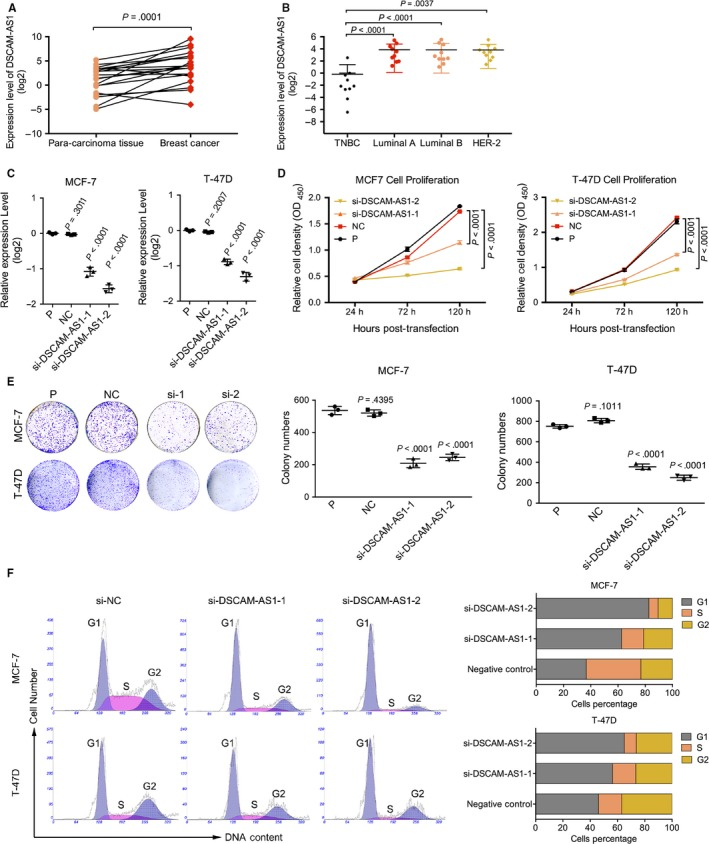 DSCAM ‐ AS 1 regulates cell proliferation and colony formation by inducing the G1/S transition. A, DSCAM ‐ AS 1 was highly expressed in 21 paired breast tumors and para‐carcinoma fresh frozen tissues by qRT ‐ PCR . Error bars represent the SD of 3 experimental replicates. B, DSCAM ‐ AS 1 was highly expressed in luminal and Her‐2 overexpression subtypes of breast cancer among 40 fresh frozen breast cancer tissues by qRT ‐ PCR . Error bars represent the SD of 3 experimental replicates. C, Interference efficiency of si RNA s by qRT ‐ PCR targeting DSCAM ‐ AS 1 in MCF ‐7 and T‐47D cell lines. Error bars represent the SD of 3 biological replicates. D, CCK 8 proliferation assay following knockdown of DSCAM ‐ AS 1 by si RNA s showed reduced cell proliferation in MCF ‐7 and T‐47D cell lines. Error bars represent the SD of 3 biological replicates. E, Knockdown of DSCAM ‐ AS 1 by si RNA s reduced the cell clonality in MCF ‐7 and T‐47D cell lines. Error bars represent the SD of 3 biological replicates. F, Knockdown of DSCAM ‐ AS 1 by si RNA s induced G 1 /S cell cycle arrest in MCF ‐7 and T‐47D cell lines. Error bars represent the SD of 3 biological replicates