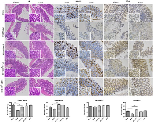 B. fragilis ZY-312 improves gut barrier integrity and function in the CDI mouse model. Representative images of hematoxylin-eosin stained cecum and colon tissue samples from all groups are shown. Images showing representative immunohistochemical staining of <t>Muc-2</t> and ZO-1 protein located in cecal and colon tissues in the Blank, CDI model, MTZ, and BFT groups are also shown. Mice in the Blank group were reared parallelly without any treatment. Mice in the CDI model group drank water with antibiotics including kanamycin (0.8 mg/mL), gentamicin (0.07 mg/mL), colistin (0.1135 mg/mL), metronidazole (0.43 mg/mL), and vancomycin (0.09 mg/mL) from D –9 to D –2, intraperitoneally injected with clindamycin (10 mg/kg) at D –1, and orally challenged with 3 × 10 8 cfu of C. difficile spores from D0 to D2. Mice in the MTZ group were treated with metronidazole (1 mg/day) from the day of C. difficile spore challenge (D0) to D5. Mice in the BFT groups were CDI model mice prophylactically treated with 1 × 10 7 or 1 × 10 8 cfu/day B. fragilis from the onset (D –9) to the end of CDI modeling (D2). Data of mean optical density are shown as means ± SEM. ∗ p