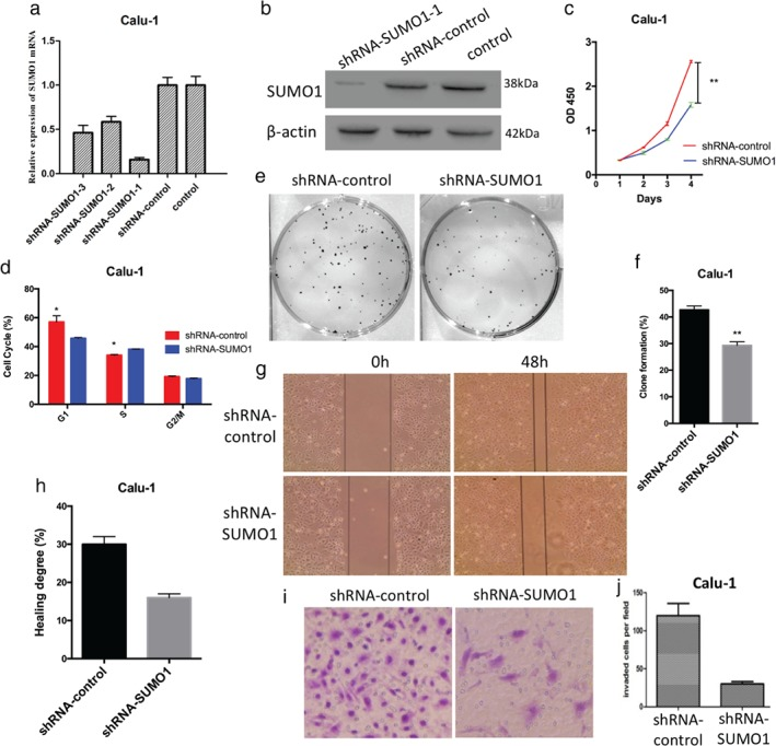 Downregulation of SUMO1 suppresses the proliferation, cell cycle progression, colony formation, migration, and invasion of Calu‐1 cells in vitro. ( a ) Quantitative real time‐PCR analysis revealed that the messenger RNA (mRNA) expression levels of SUMO1 in short hairpin RNA (shRNA)‐SUMO1‐1 Calu‐1 cells were significantly downregulated. ( b ) Similar results were obtained through Western blot analysis. ( c ) Downregulation of SUMO1 expression significantly inhibited the ( c ) proliferation, ( e , f ) colony‐formation ability, ( g , h ) migration, and ( i , j ) invasion of Calu‐1 cells. ( d ) Downregulation of SUMO1 reduced the number of Calu‐1 cells in the S phase of the cell cycle.