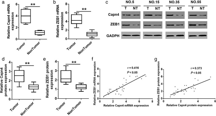 Capn4 overexpression is correlated with ZEB1 expression in human esophageal squamous cell carcinoma (ESCC). ( a , b ) Quantitative real‐time PCR analysis of Capn4 and ZEB1 messenger RNA (mRNA) expression in 86 ESCC and paired non‐tumor tissues (** P
