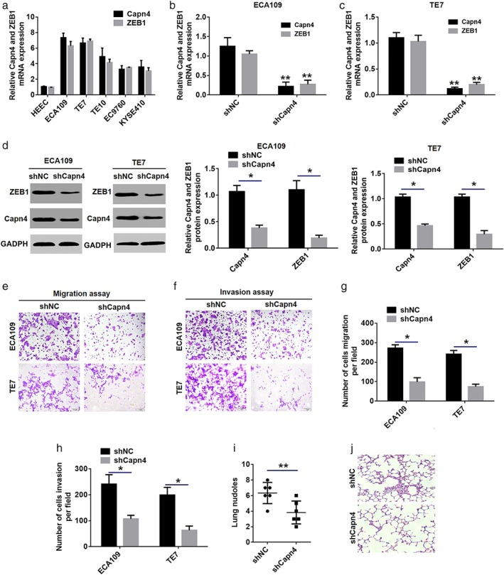 Stable knockdown of Capn4 reduced ZEB1 expression and inhibited esophageal squamous cell carcinoma (ESCC) invasion and metastasis in vitro and in vivo. ( a ) Quantitative real‐time <t>PCR</t> (qRT‐PCR) analysis of Capn4 and ZEB1 expression in human esophageal epithelial and ESCC cell lines. ( b , c ) qRT‐PCR analyses were used to detect Capn4 and ZEB1 messenger <t>RNA</t> (mRNA) expression in ECA109 and TE7 cells stably transfected with the short hairpin negative control (shNC) vector or shCapn4 plasmid (** P