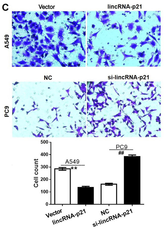 Effects of lincRNA-p21 on lung cancer cell proliferation, <t>apoptosis</t> and migration. (A) A549 and PC9 cells were transfected with lincRNA-p21 overexpression plasmid or lincRNA-p21 siRNA for 72 h, and the cell proliferation was detected using a Cell Counting Kit-8 assay. (B) The cells were transfected with lincRNA-p21 overexpression plasmid or lincRNA-p21 siRNA for 72 h, and cell apoptosis was detected by flow cytometric analysis. (C) The transfected cells were subjected to Transwell analysis for 24 h (magnification ×200). *P