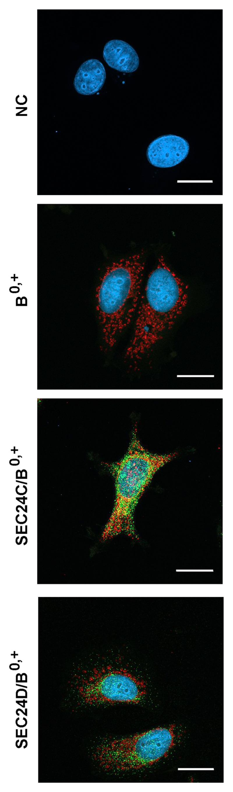 Localization of ATB 0,+ and SEC24C in MCF7 cells. Cells were fixed with methanol, as described in Materials and methods . They were incubated, as indicated, with either anti-SEC24C or anti-SEC24D antibodies, detected with Alexa Fluor ® 488-conjugated AffinityPure Fab Fragment Goat Anti-Rabbit IgG (H + L) (green). Further treatment was performed as described in Materials and methods Section 2.5 . Next the cells were incubated with anti-ATB 0,+ antibodies conjugated with biotin, followed by incubation with AlexaFluor568 conjugated streptavidin (red). Nuclei are visualized with DAPI. NC, negative control without the primary antibodies. B 0,+ , analysis of B 0,+ localization without anti-SEC24 antibodies. Bar 20 μm.