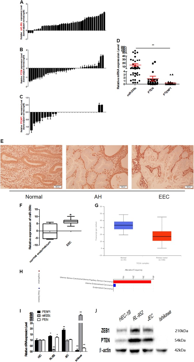 Inverse expression of PTEN or PTENP1 and miR-200c in EEC tissue samples and cell lines. a In 37 of 40 EEC samples (92.5%), miR-200c was expressed at higher levels than that in adjacent normal tissues. b In 25 of 37 EEC samples (67.6%), PTEN was expressed at lower levels than in adjacent normal tissues. c In 25 of 27 EEC samples (92.6%), PTEN was expressed at lower levels than in adjacent normal tissues. d miR-200c, PTEN, and PTENP1 expression in 40 cases were analyzed, and showed there was a statistically correlation between their expression. e Immunohistochemistry showed that PTEN was lost in most complex atypical hyperplasia and cancer tissues. f GEO database was used to analyze the expression of miR-200c in EEC. g The expression of PTEN in 546 cases of endometrial carcinoma were analyzed in TGCA database by http://ualcan.path.uab.edu/analysis.html . h TGCA database was used to analyze the PTENP1 expression. i – j In four EEC cell lines the expression of PTEN, PTENP1, and miR-200c was detected by qRT-PCR and western blot. There was an opposite relationship between miR-200c and PTENP1/ PTEN. ** P