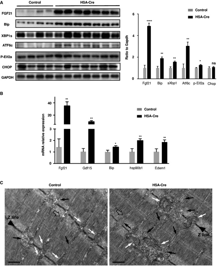 Lipin1 deficiency triggers an ER stress in muscles and leads to Unfolded Protein Response activation UPR activation was analyzed by immunoblotting with indicated antibodies in GC muscles of 4‐month‐old HSA‐Cre ( n = 7) and control ( n = 4) mice. Quantification by densitometric analyses of Fgf21, Bip, sXbp1 Atf6 cleaved form, p‐Eif2a, and Chop protein levels is presented as a graph. Data are normalized to Gapdh and expressed as a fold change relative to the control mice. Data are mean ± SEM (* P