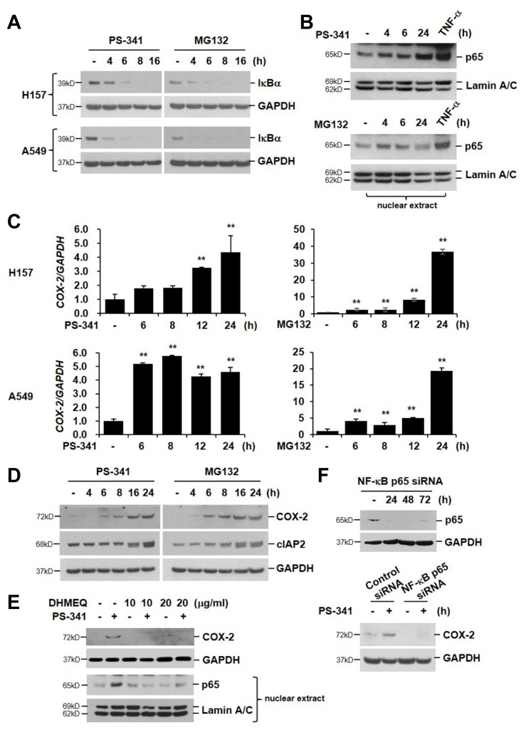 PI activates IκB/NF-κB pathway (A) NCI-H157 and A549 cells were treated with PS-341 (50 nM) or MG132 (20 μM) for the indicated times. Total cellular extracts were subjected to Western blot analysis for IκBα and GAPDH. (B) NCI-H157 cells were treated with PS-341 or MG132 for the indicated times. Nuclear proteins were extracted and subjected to Western blot analysis for p65 and Lamin A/C. TNF-α (10 ng/mL, 60 min) was used as a positive control. (C) Both cell lines were stimulated with PS-341 or MG132 for 0, 6, 8, 12, or 24 h. Total RNA was isolated and quantitative real-time PCR for COX-2 and GAPDH was performed. Data represent the mean ± SD of triplicate experiments. ** P