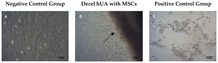 Contact cytotoxicity assay. ( A ) MSCs cultured under normal conditions (negative control group); ( B ) MSCs were co-cultured with decellularized <t>hUA,</t> ( C ) MSCs with <t>SDS</t> (positive control group). Black arrows indicate the contact of MSCs with the segments of decellularized hUA. Original magnification 10×, scale bars 100 μm.