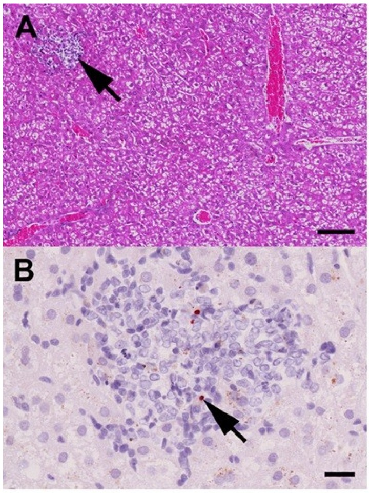Histopathological findings in the liver of a Rousettus aegyptiacus fruit bat immunized with the MP-12 vaccine strain at day seven post immunization. ( A ) Histopathology shows few, randomly distributed foci of hepatocellular necrosis and loss with macrophage and lymphocyte infiltration (arrow). Furthermore, the hepatocytes display moderate, coalescing to diffuse, floccular cytoplasmic vacuolization, interpreted as a species-specific, relatively high level of glycogen storage. Hematoxylin-eosin. Bar = 100 μm; ( B ) Immunohistochemistry for Rift Valley fever phlebovirus (RVFV) Gc antigen reveals minor amounts of intra- and extracellular, strongly immunoreactive granula within the lesions (arrow), interpreted as debris remaining after virus-induced hepatocellular death. Immunohistochemistry, monoclonal mouse anti-RVFV Gc-protein antibody, avidin-biotin-peroxidase-complex method, 3-amino-9-ethyl-carbazol chromogen (red), hematoxylin counterstain (blue). Bar = 20 μm.