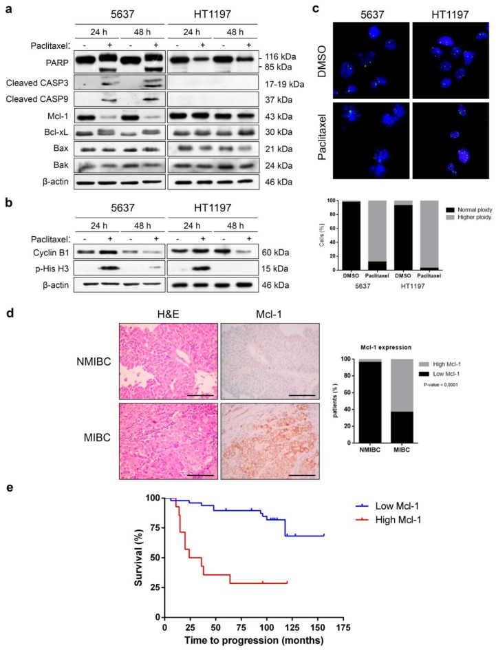 Downregulation of Mcl-1 is necessary for <t>paclitaxel-induced</t> apoptosis of bladder cancer cells. ( a , b ) 5637 and HT1197 cells were treated with dimethyl sulfoxide (DMSO) or 0.1 µM paclitaxel for 24 and 48 h. Western blot analyses of PARP, cleaved caspase-3, cleaved caspase-9, Mcl-1, Bcl-xL, Bax, Bak, cyclin B1, and p-histone H3 Ser10 are shown. β-actin was used as a loading control. ( c ) Cells were subjected to FISH with a centromeric probe specific for chromosome 17 (Spectrum green). DNA was stained with DAPI (blue). At least 100 cells were counted for each condition, and the percentage of cells with normal ploidy or higher ploidy is presented in the histogram. Representative images are shown. Photomicrographs were taken using a 40× objective. ( d ) The expression of Mcl-1 was evaluated in samples of 72 patients with muscle-invasive or non-muscle-invasive bladder carcinoma by immunohistochemistry and quantified in the histogram. The relationship between the levels of expression of Mcl-1 and tumor infiltration in patients with bladder carcinoma was statistically significant. p -values were obtained using Fisher's exact test. NMIBC: non-muscle-invasive bladder cancer; MIBC: muscle-invasive bladder cancer. Bars represent 100 μm. ( e ) Kaplan–Meier analysis of recurrence-free survival in patients with low (blue) and high (red) Mcl-1 expression. Tick marks represent censored patients. p -value