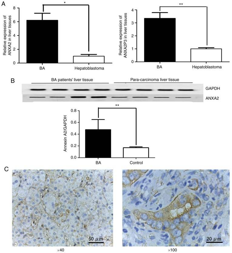 ANXA2 and ANXA2P3 expression was detected in liver tissues from patients with BA. (A) Liver tissue from patients with BA (n=20) exhibited significantly higher ANXA2 and ANXA2P3 expression compared with in liver tissue from patients with hepatoblastoma (n=6). * P