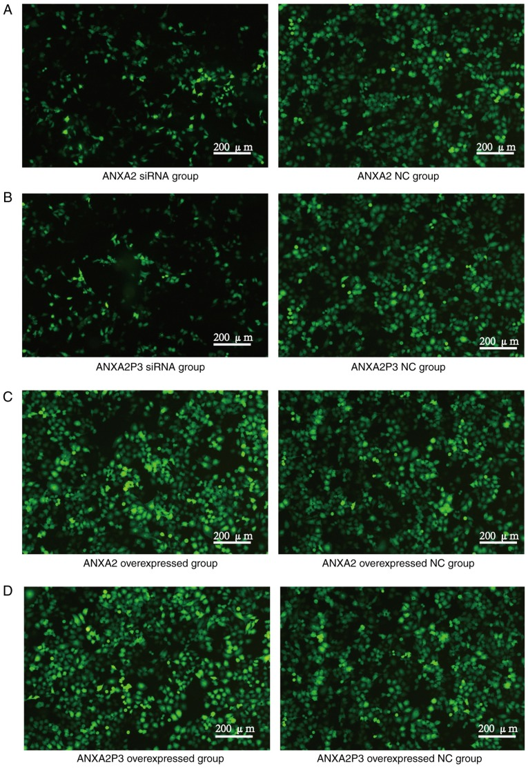 Detection of green fluorescent protein in transfected liver cells. (A) ANXA2 and (B) ANXA2P3 siRNA groups. (C) ANXA2 and (D) ANXA2P3 overexpressed groups. ANXA2, Annexin A2; ANXA2P3, ANXA2 pseudogene 3; NC, negative control; siRNA, small interfering RNA.
