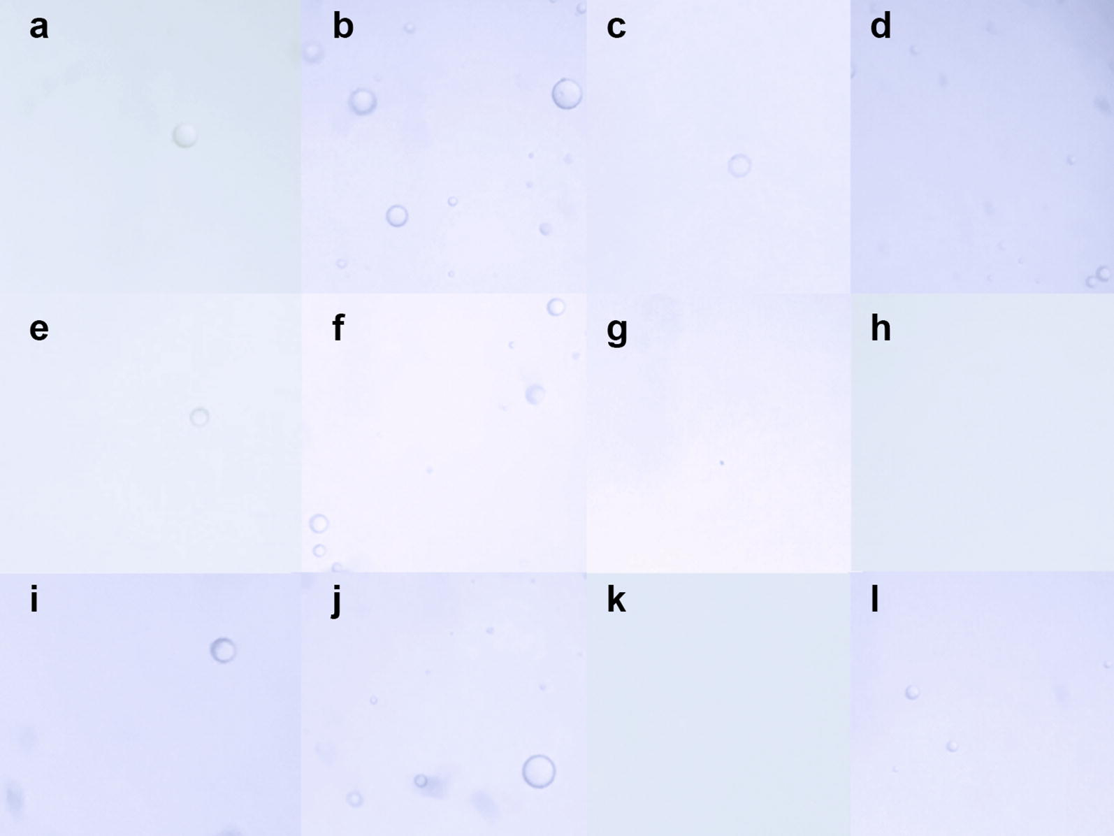 Images from syringes 1 [Saldanha Rodrigues (SR) 1-mL insulin syringe, a – d ], 2 [Becton–Dickinson (BD) Plastipak 1-mL insulin syringe, e – h ], and 3 [BD <t>Safetyglide</t> insulin syringe, i – l ]. In syringe 1, oil droplets are seen in all groups: a Isolated silicone oil droplet in a positive control without agitation (group 1). b Multiple silicone oil droplets in a positive control with agitation (group 2). c Isolated silicone oil droplet in fluid-only without agitation (group 3). d Multiple silicone oil droplets in fluid-only with agitation (group 4). In syringe 2, no oil is seen in groups 3 and 4: e Positive control without agitation (group 1). f A positive control with agitation (group 2). g Fluid-only without agitation (group 3). h Fluid-only with agitation (group 4). In syringe 3, silicone oil is seen in three groups. i Isolated silicone oil droplet in a positive control without agitation (group 1). j Multiple silicone oil droplets in a positive control with agitation (group 2). k No silicone oil droplet in fluid-only without agitation (group 3). l Four silicone oil droplets in fluid-only with agitation (group 4)
