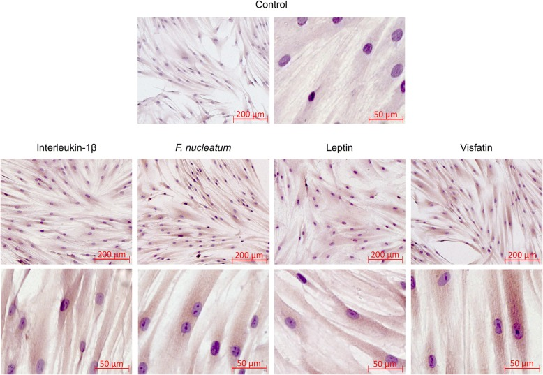Effects of IL-1β (1 ng/ml), F. nucleatum (OD: 0.025), leptin (3 ng/ml) or visfatin (100 ng/ml) on SSTR2 protein levels in PDL fibroblasts at 1 d, as analyzed by immunocytochemistry. Untreated cells served as control. Experiments were performed in triplicates and representative images of cells from one donor are shown