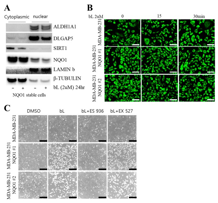 Sirtuin 1 (SIRT1) is not involved in bL-NQO1-mediated cell death. ( A ) Cytoplasmic and nuclear fractionation was performed as described in Section 4 , using NQO1 stable cells with or without bL (2 µM) for 24 h. The cell lysate was subjected to Western blot analysis with the indicated antibodies; β-tubulin and lamin B were used for cytoplasmic and nuclear markers, respectively. ( B ) Cellular localization of SIRT1 was examined in MDA-MB-231 and two independent clones of NQO1 stable cells (NQO1 #1 and #2) with or without bL (2 µM) for the indicated time. Images were taken under a new hybrid microscope (Echo, San Diego, CA, USA). The scale bar is 130 μm. ( C ) Cell morphologies of MDA-MB-231 and two independent clones of NQO1 stable cells (NQO1 #1 and #2) were examined after treatment with a combination of bL (2 µM), an NQO1 inhibitor (ES 936, 1 µM), and an SIRT1 inhibitor (EX 527, 1 µM) for 24 h, as indicated. Images were taken using a new hybrid microscope (Echo, Echo, San Diego, CA, USA). The scale bar is 230 μm.